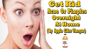 how to use vinegar to get rid of hair dye how to get rid of acne or pimples overnight at home by apple