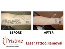 pristine laser pristinelaser twitter