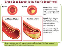 best medicine for inflammation french opc grape seed for diabetes heart cancer and more terry