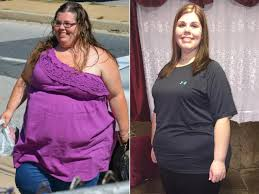 gastric bypass surgery videos at abc news video archive at abcnews com