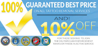 laser tattoo removal melbourne fl best tatto 2017
