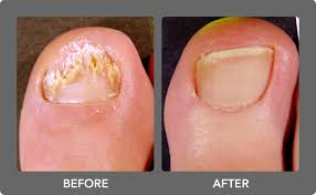 nail art before and after 21 toe nail fungus fascinating picture