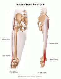 Picture Of Human Knee Muscles Knee And Leg Platinum Physiotherapy