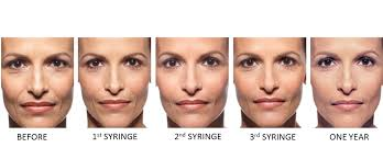 juvederm ultra plus forever young bbl photfacial evolvmd laser
