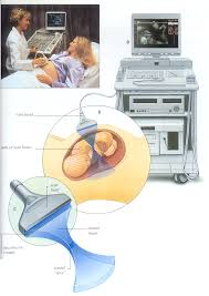 suggestions online images of ultrasound machine diagram