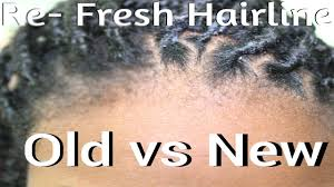 hair styles to cover bad edges how to fix your hairline edges box braids or twists youtube