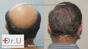 best hairtransplant in the world video best hair transplant clinic in the world dr u hair