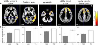 frontiers reduced gray matter volume in the social brain network