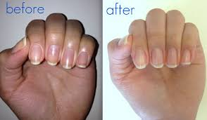 how to fix stained nails from nail polish u2013 nail ftempo