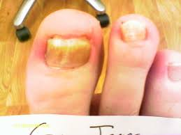 brighton compleet laser fungal nail clinic private nail salon in