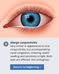 eyes sensitive to light at night pink eye facts identify symptoms and treat pink eye conjunctivitis
