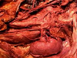 Picture Of The Abdomen Organs Gross Anatomy Dissections Smph Video Library