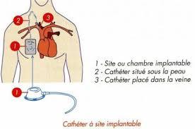 chambre à cathéter implantable quca cathéter et chambre implantable la vie de mlle j