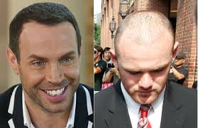 best hairtransplant in the world celebrity hair transplants don t always believe what you read