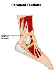 Foot Tendons Anatomy Peroneal Tendonitis Sports Podiatry