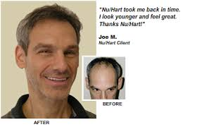 hair transplant costs in the philippines pittsburgh hair loss treatment nuhart hair transplants