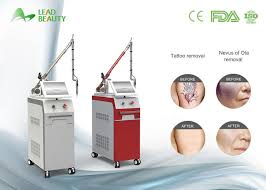 cooling system q switch nd yag laser tattoo removal machine on sale