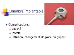 chambre implantable bouch馥 chambre implantable bouch馥 16 images のぶかつの部活動 since