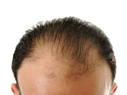 hair transplant costs in the philippines hair transplant cost the ultimate guide make an inquiry medigo