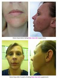 Challenge With Water Help Clear Skin 6 Week Challenge The Results Works With Water
