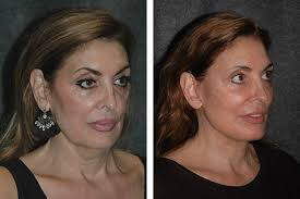 hairstyles that cover face lift scars mini face lift face lift