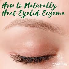 light treatment for eczema how to naturally heal eyelid eczema it s an itchy little world