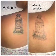 tattoo prices san francisco tattoo be gone sf 62 photos 100 reviews tattoo removal 126