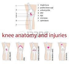 Anatomy Of Knee Injuries 2 426 Knee Injury Cliparts Stock Vector And Royalty Free Knee