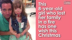 how to make christmas merry for this 8 year old arson survivor