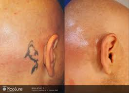 tattoo removal lake medical spa u0026 skin care center osage beach mo