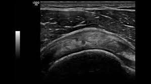 logiq e ultrasound u2013 bt12 point of care ultrasound ultrasound