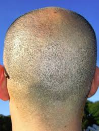 special cuts for women with hairloss male hair loss all you need to know