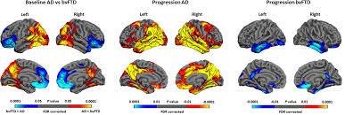 Brain Mapping Mapping Brain Shrinkage In Dementia Atlas Of Science