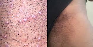 do ingrown hair hurt ingrown hair on vagina lips labia minora majora bump prevent