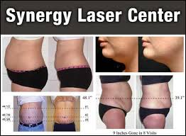 lipo light laser treatment reviews gotdailydeals 149 for 2 lipo light fat reduction treatments at
