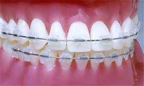 nickel free braces clear braces ta orthodontist