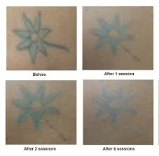 70 best tattoo removal images on pinterest tattoo removal a