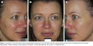 light treatment for skin ellipse lasers advanced skin treatments using laser and light
