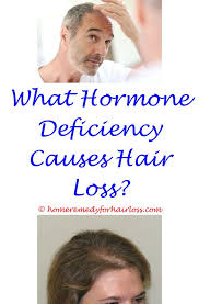 what causes hair loss in women over 50 293 best hair loss causes images on pinterest hairdos oil for