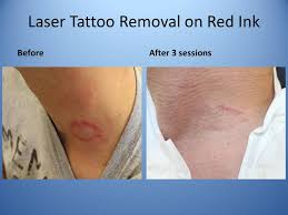 laser tattoo removal u2013 ccorona clinic