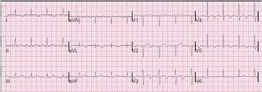 strain pattern ecg meaning anterior t wave inversions and pe ems 12 lead