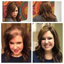 wigs for women with thinning hair best clip in wig toppers for women with thinning hair or hair loss