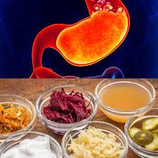 acid reflux diet best foods foods to avoid u0026 supplements that