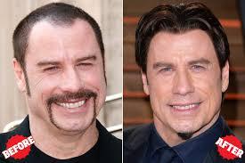 hair plugs for men tom brady inspired my hair transplant new york post