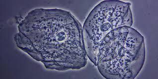 leucociti a tappeto epiteliali squamose nelle urine cosa significa