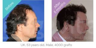 hair plugs for men hair transplant turkey the no 1 choice for hair transplants in turkey