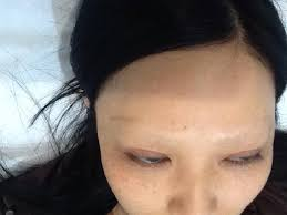 tattoo removal woman left with no eyebrows after dodgy laser removal