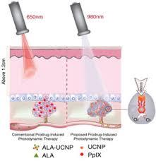 led light skin cancer tuning light to kill deep cancer tumors