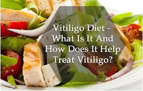 role of diet in vitiligo foods to eat u0026 avoid in vitiligo