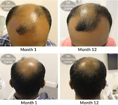 hair growth success u201cpositive results service is sound and good